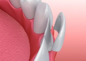Illustration of a veneer being placed on a front tooth
