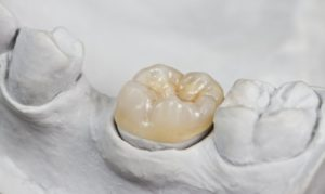 A simulated dental crown in a casted mold.